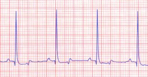 Electrocardiogram showing normal waveforms