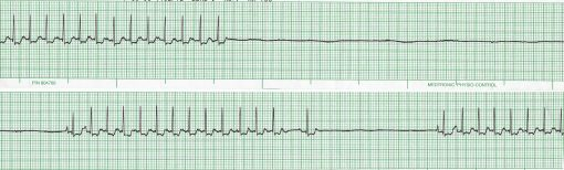 ECG tracing from a dog with fainting due to a slow heart rate (bradycardia).